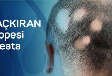 Photo of Saçkıran (Alopesi Areata): Nedenleri, Belirtileri ve Tedavisi